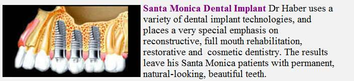 santa monicadental implant
