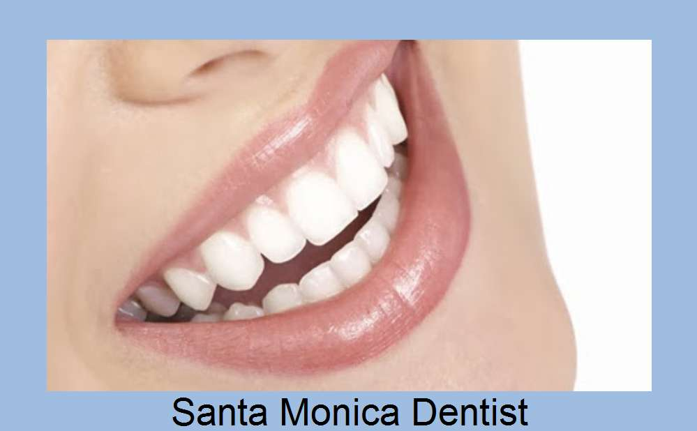 Santa Monica - Los Angeles -  Dental Implant -